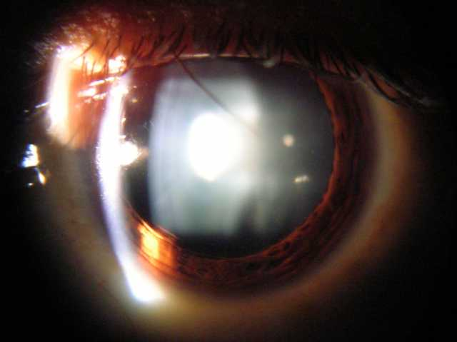 slit lamp view of eye